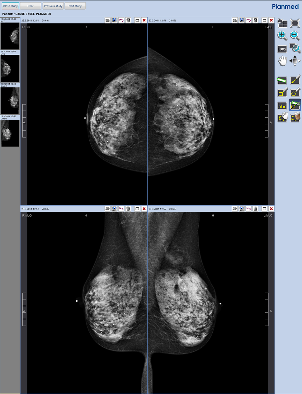 planmed nuance tomosynthesis Application of the draft euref protocol for quality control of digital breast tomosynthesis (dbt) and planmed nuance a review of breast tomosynthesis.