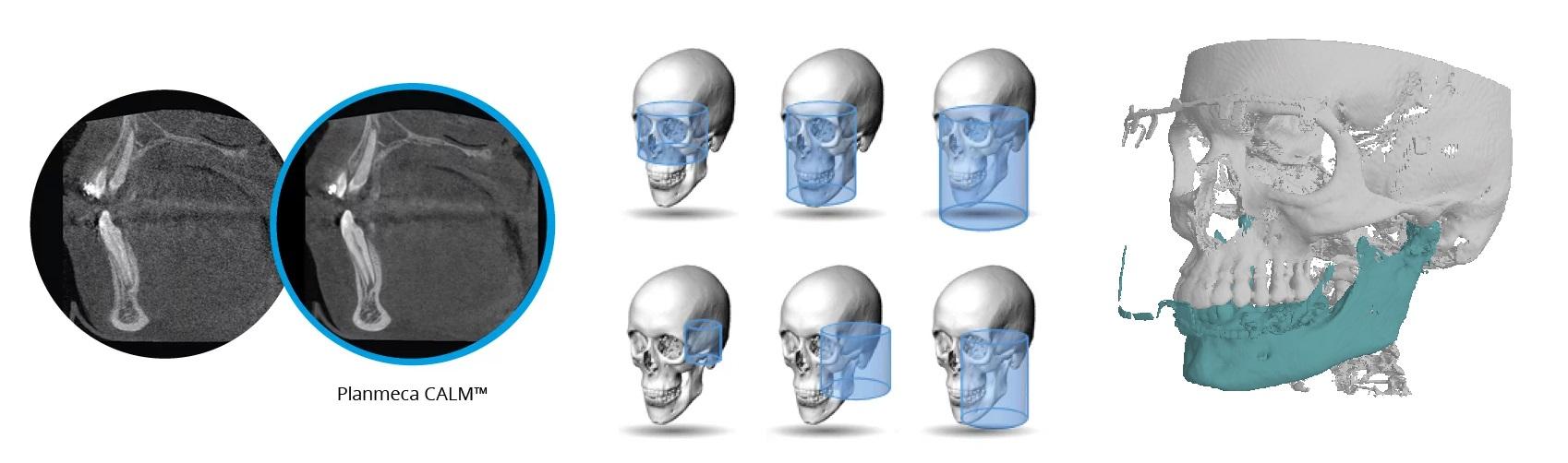 Система Planmeca ProMax 3D Mid
