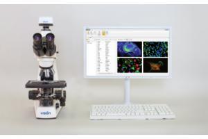 Анализ, подготовка отчетов и организация виртуальных препаратов в флуоресцентной микроскопии Vision Bio® Epi