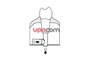 Резец 11, искусственный зуб, защелка, 100 шт